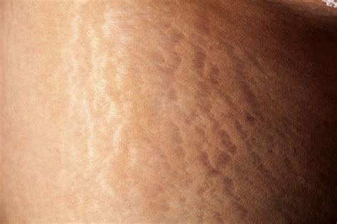 How to Tighten Up Loose Skin and Get Rid of Stretch Marks
